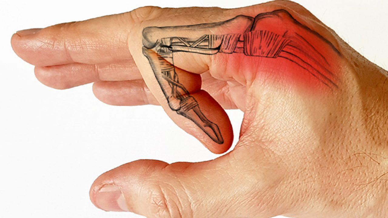 articulația umflată și dureroasă a degetului inelar)