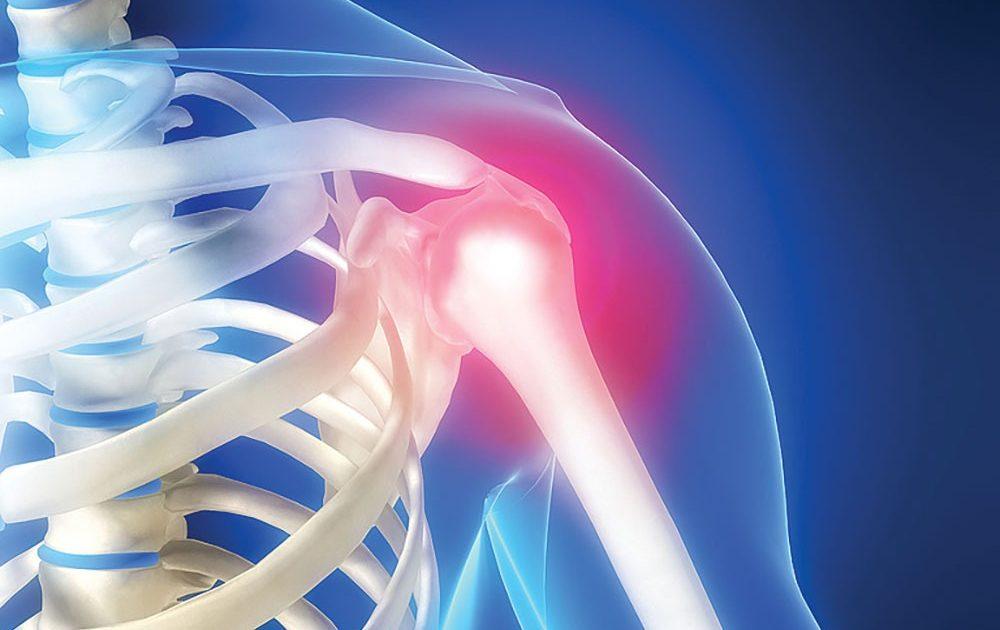 durere arzătoare în articulația cotului la îndoire problemele articulare pot cauza dureri articulare