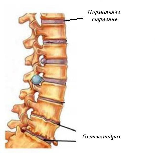 cu osteocondroza coloanei vertebrale, medicamentele sunt prescrise cauze ale artrozei genunchiului