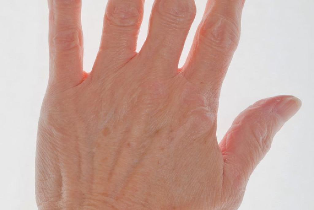 artrita tratamentului degetului mijlociu