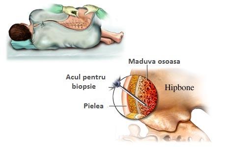 cauza bolii articulațiilor umărului