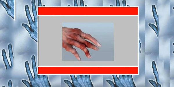 ameliorați rapid inflamația articulațiilor degetelor)