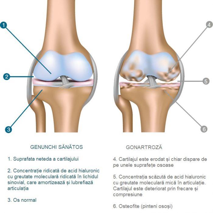 acumularea de lichid sinovial în tratamentul articulației genunchiului