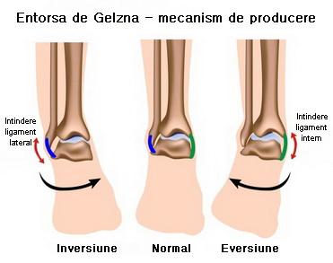 cum să identifice deteriorarea ligamentelor gleznei)