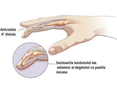 articulația pe deget doare decât ungerea)
