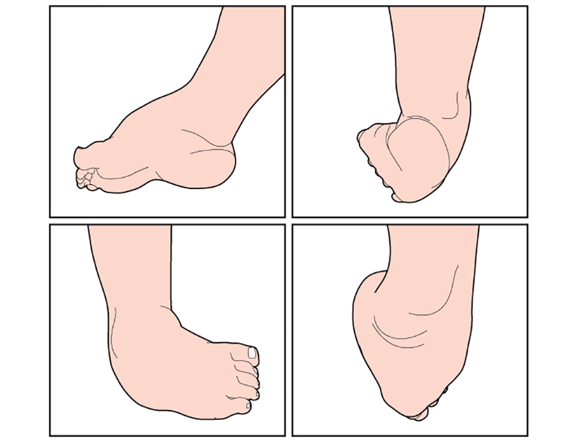 durere în articulațiile picioarelor la copii