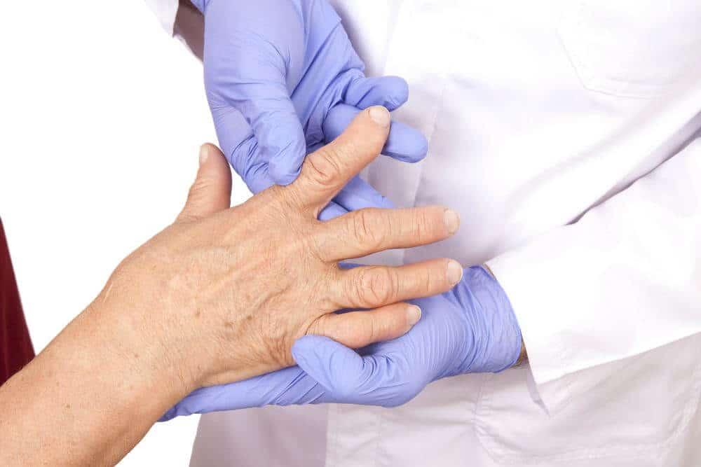 artrita ca un chirurg tratează)