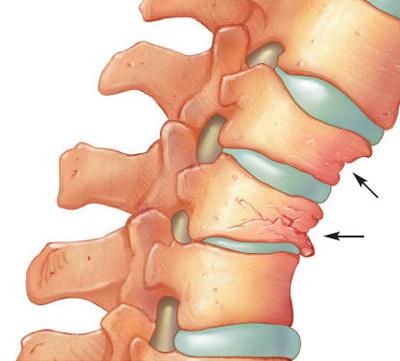 tratamentul osteochondrozei coloanei vertebrale și artrozei articulare