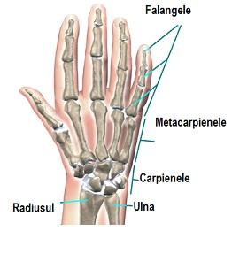 Cum atenuam durerile mainilor cand lucram la calculator?, Durere în articulațiile mâinii drepte