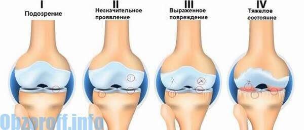 artroza diferitelor articulații