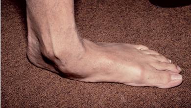 durere în articulația piciorului cu piciorul plat transversal
