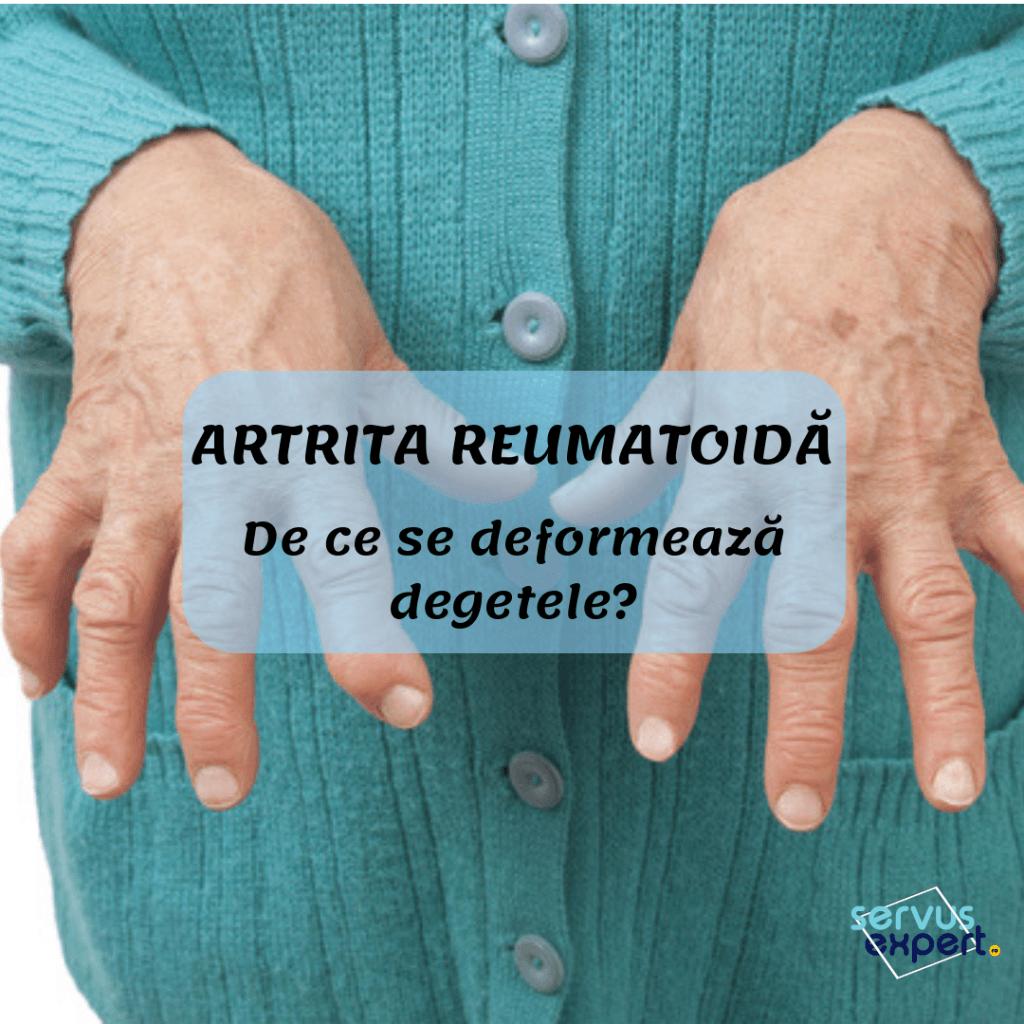 artrita reumatoidă a degetelor cum se tratează