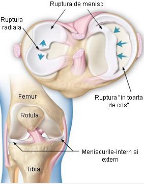 traumatism la meniscul genunchiului tratament de șocuri electrice comune