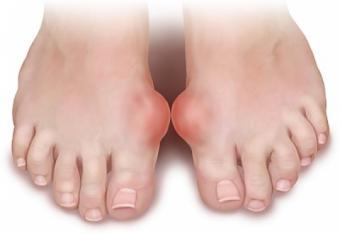 artrita guta a simptomelor articulației cotului și tratament fizioterapie pentru durerea articulației șoldului