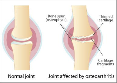 Artroza articulațiilor transversale costale modul de tratare,