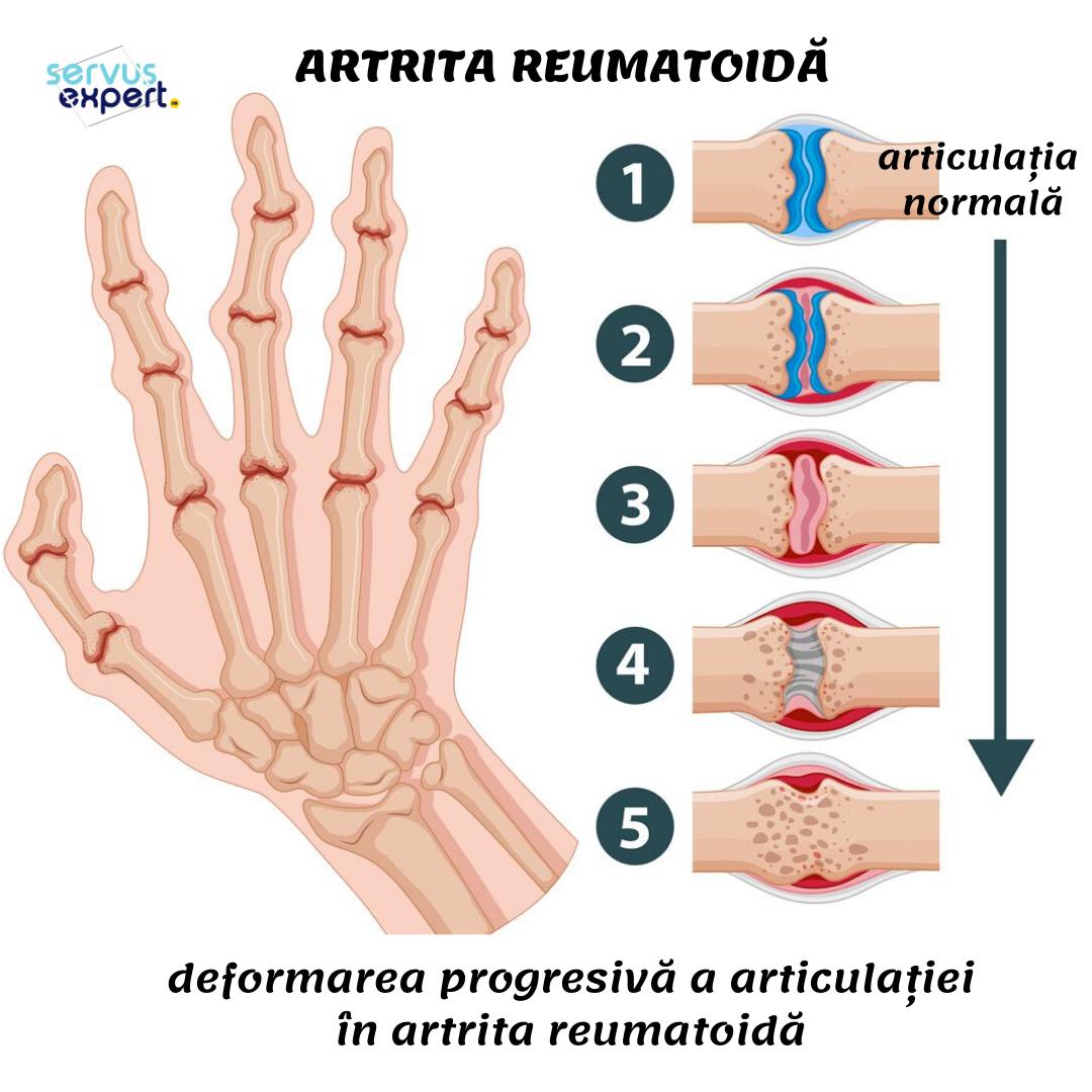 dureri severe ale articulației încheieturii