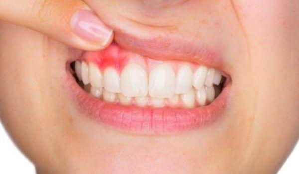 Manifestări dentare în bolile țesutului conjunctiv - blumenonline.ro