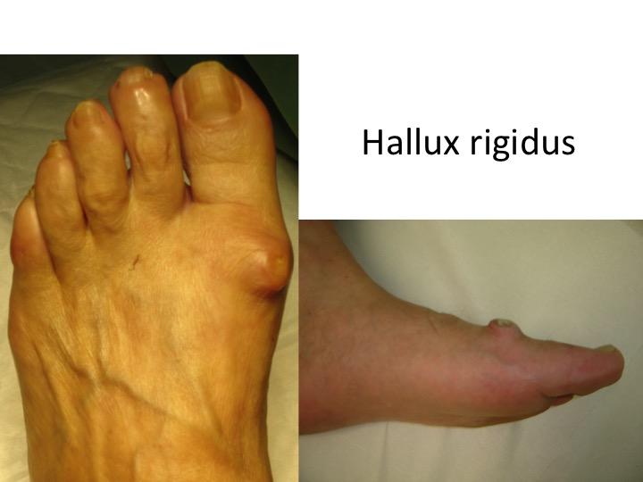 articulația de pe picior este inflamată decât tratată)