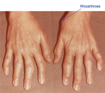 articulații blocate ale tratamentului degetelor)