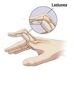 Articulații de rănire la mână