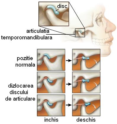 Durerea la ureche și sunetul poate fi un semn al disfuncției TMJ