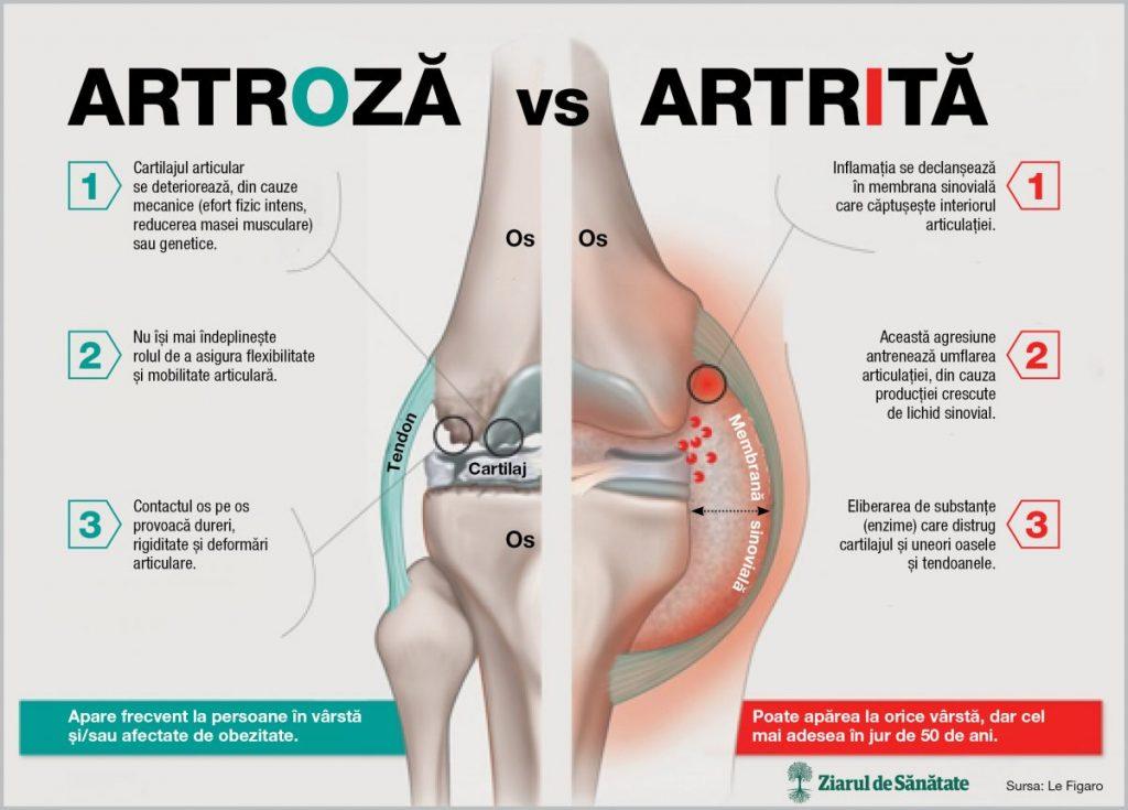 artrita și artroza diferențelor articulației genunchiului)