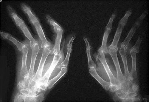 chirurgie articulară pentru dureri articulare