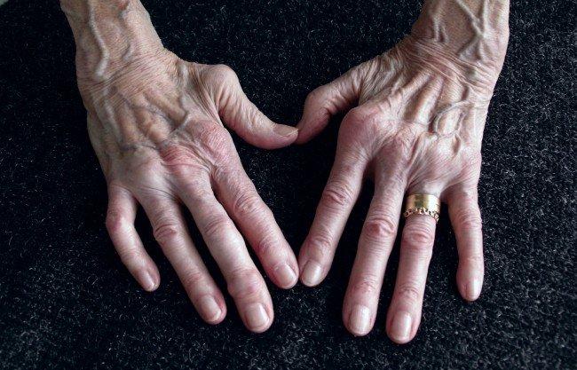 artrita reumatoidă în brațe)