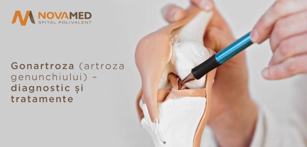 artroza gonartroza genunchiului)