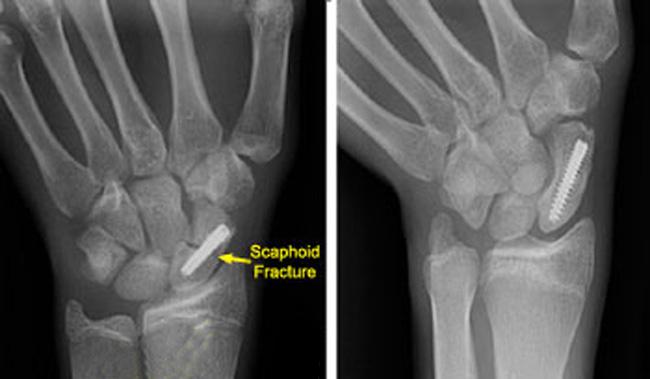 artroza scafoidă a scafoidului)