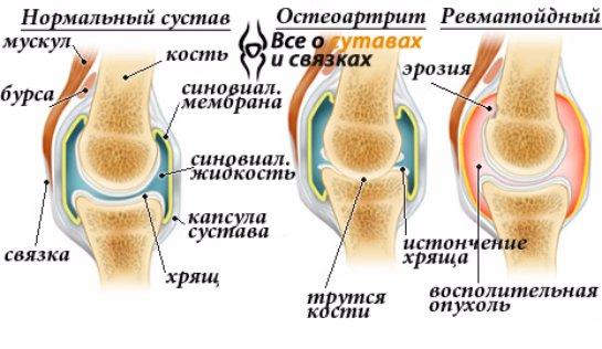 sinovita cu artrita genunchiului