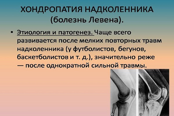 boală articulară de la șoarece)