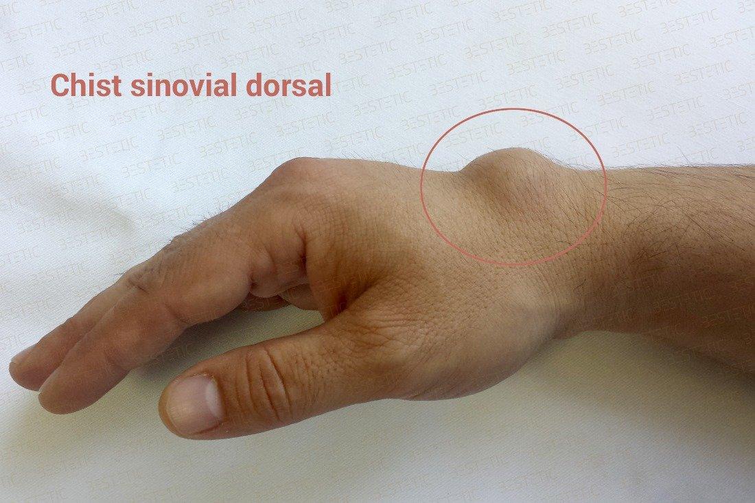 boli inflamatorii la încheietura mâinii