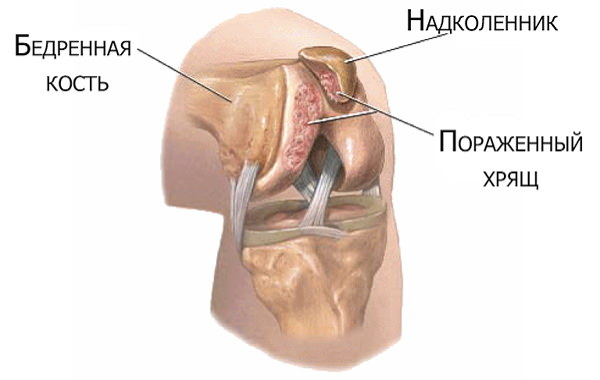 tratamentul modificărilor degenerative-distrofice ale articulației genunchiului