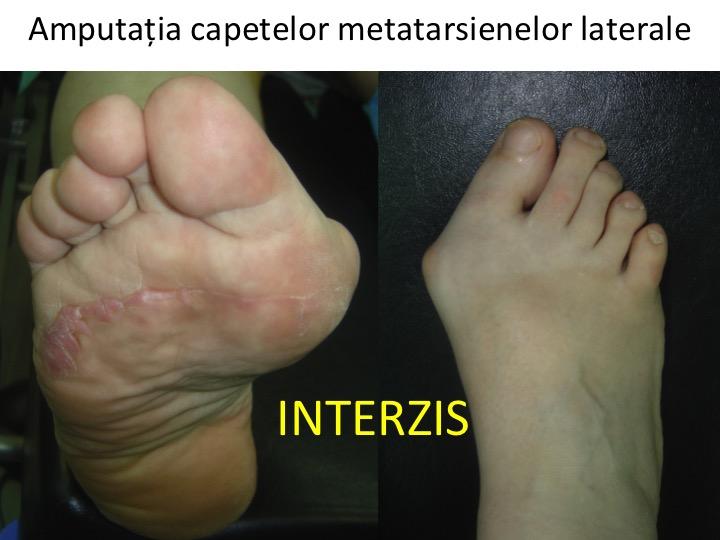 consolidarea tratamentului piciorului tratamentul articulațiilor perii roșii