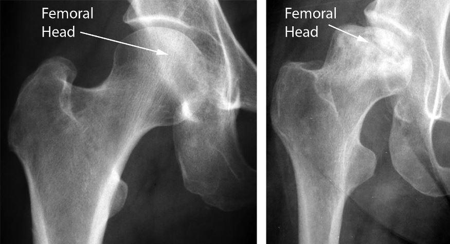 cum să tratezi colapsul articulațiilor șoldului)