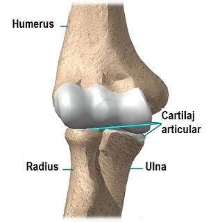 Artroza gutoasă a simptomelor și tratamentului piciorului