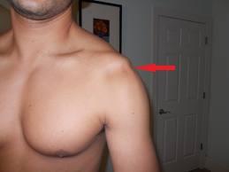 deteriorarea periostului cotului tratamentul articulației inferioare a spatelui