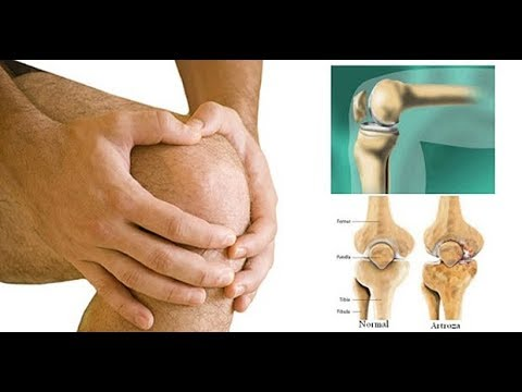 artroza articulației shoparov