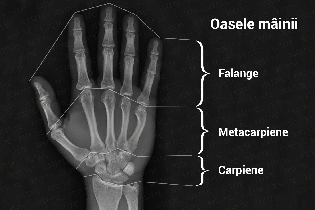 dureri articulare degetele mari după fractură