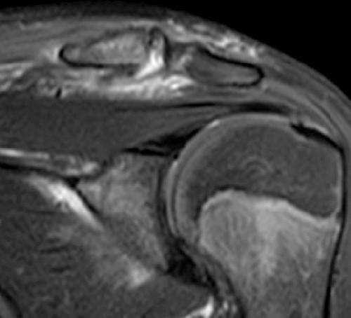 deteriorarea articulației acromioclaviculare de 1 grad)