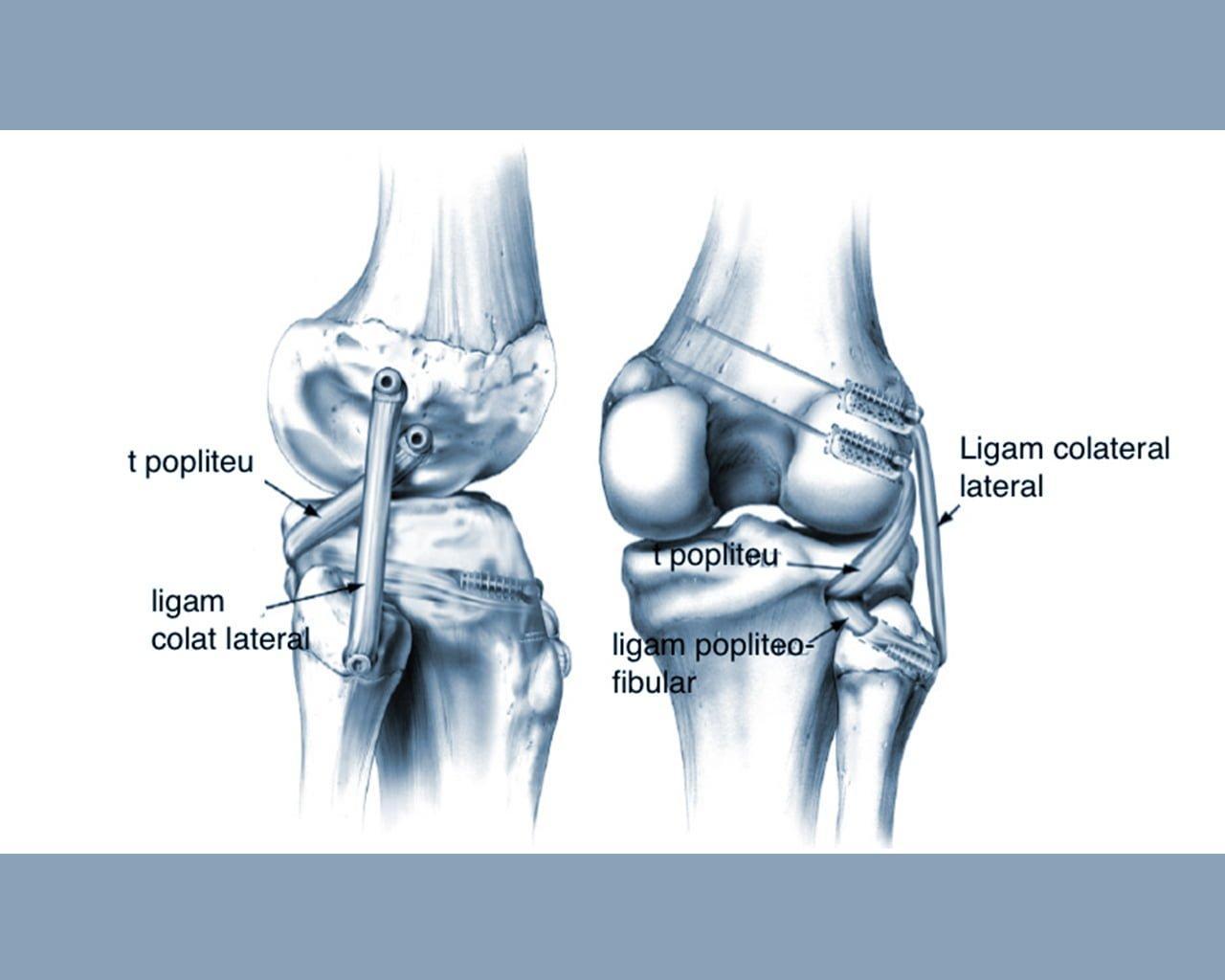 deteriorarea ligamentelor și menișului tratamentului articulației genunchiului)