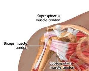 Tendinita articulației umărului - Rănire