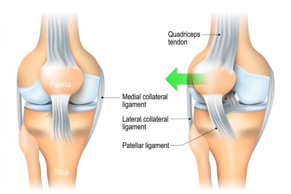 dislocarea genunchiului