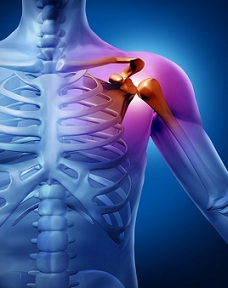 durere la nivelul umărului brațului ce trebuie făcut)