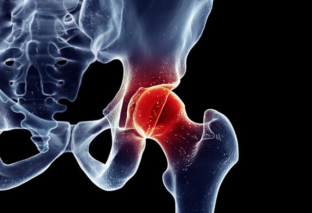 durere în articulația șoldului cu o hernie discală)