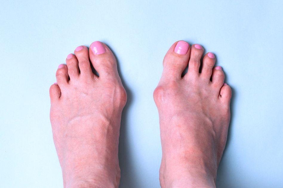 dureri articulare ale degetului mare al piciorului drept)