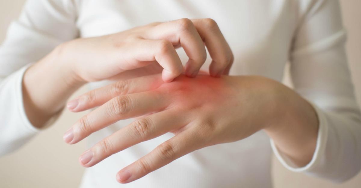 dureri articulare cu urticarie)