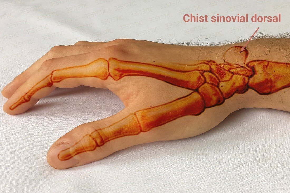 dureri articulare la încheietura mâinii cum să tratezi)