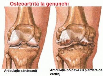 dureri de durere nocturnă la genunchi